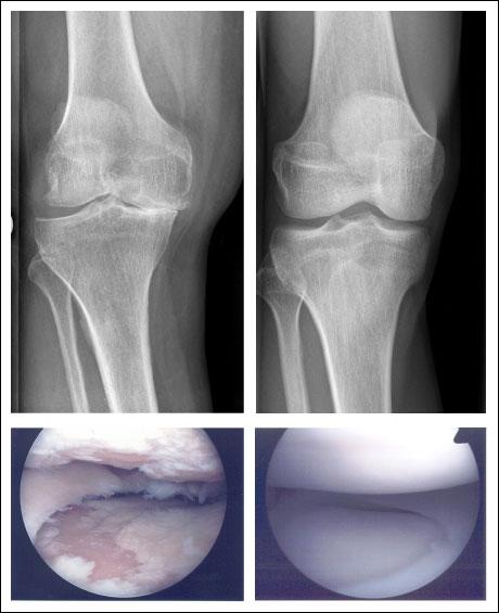 Arthrose Knie Schmerzen Lindern